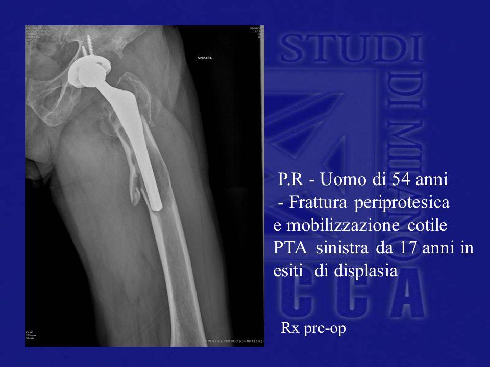 P.R - Uomo di 54 anni - Frattura periprotesica e mobilizzazione cotile PTA sinistra da 17 anni in esiti di displasia Rx pre-op