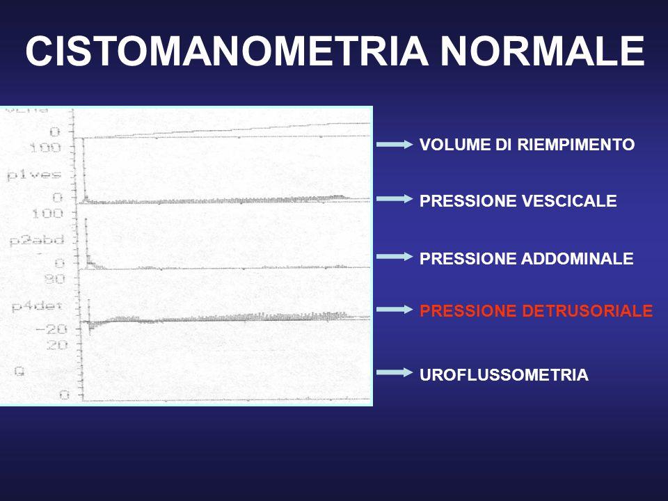 CISTOMANOMETRIA NORMALE VOLUME DI RIEMPIMENTO PRESSIONE VESCICALE PRESSIONE ADDOMINALE PRESSIONE DETRUSORIALE UROFLUSSOMETRIA