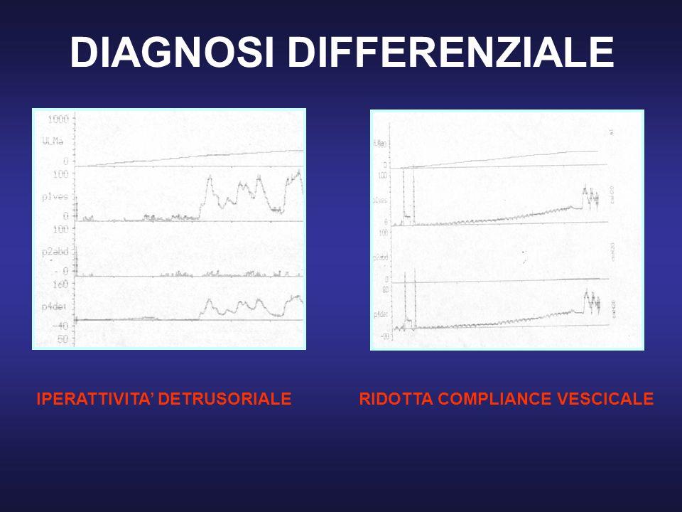 DIAGNOSI DIFFERENZIALE IPERATTIVITA DETRUSORIALERIDOTTA COMPLIANCE VESCICALE