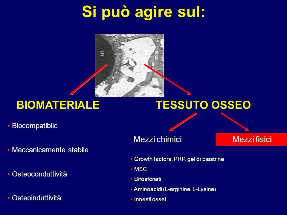 BIOMATERIALETESSUTO OSSEO Biocompatibile Meccanicamente stabile Osteoconduttività Osteoinduttività Mezzi chimici Growth factors, PRP, gel di piastrine