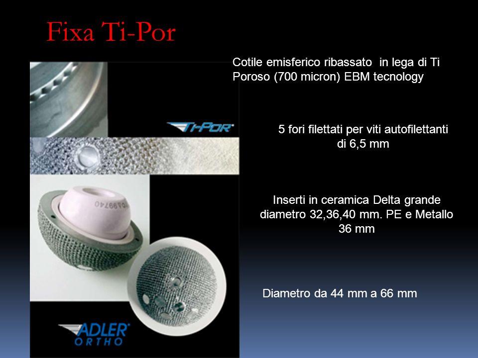 Fixa Ti-Por Cotile emisferico ribassato in lega di Ti Poroso (700 micron) EBM tecnology 5 fori filettati per viti autofilettanti di 6,5 mm Inserti in