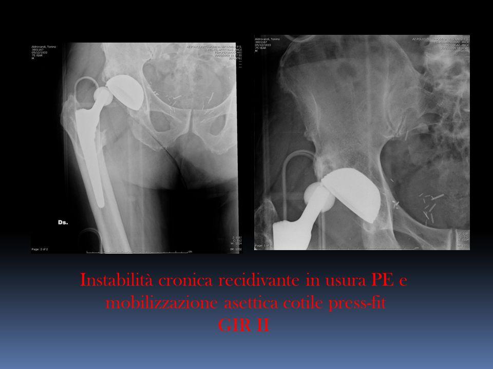 Instabilità cronica recidivante in usura PE e mobilizzazione asettica cotile press-fit GIR II
