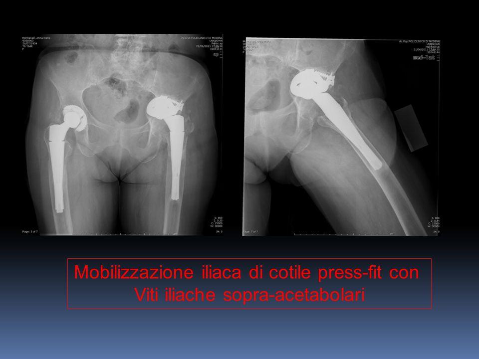 Mobilizzazione iliaca di cotile press-fit con Viti iliache sopra-acetabolari