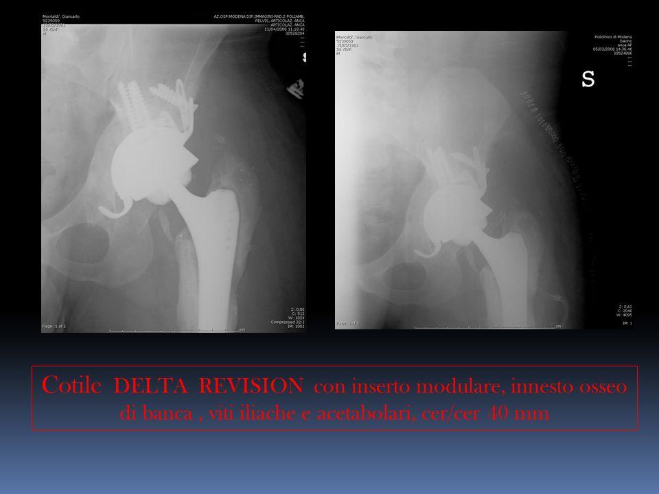 Cotile DELTA REVISION con inserto modulare, innesto osseo di banca, viti iliache e acetabolari, cer/cer 40 mm