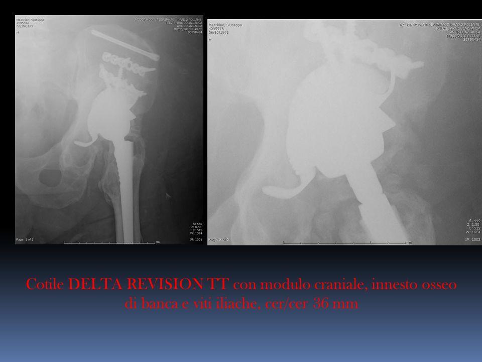 Cotile DELTA REVISION TT con modulo craniale, innesto osseo di banca e viti iliache, cer/cer 36 mm