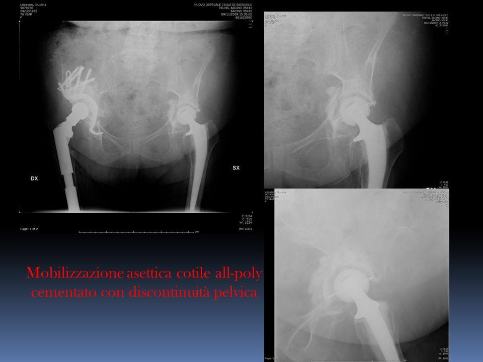 Mobilizzazione asettica cotile all-poly cementato con discontinuità pelvica