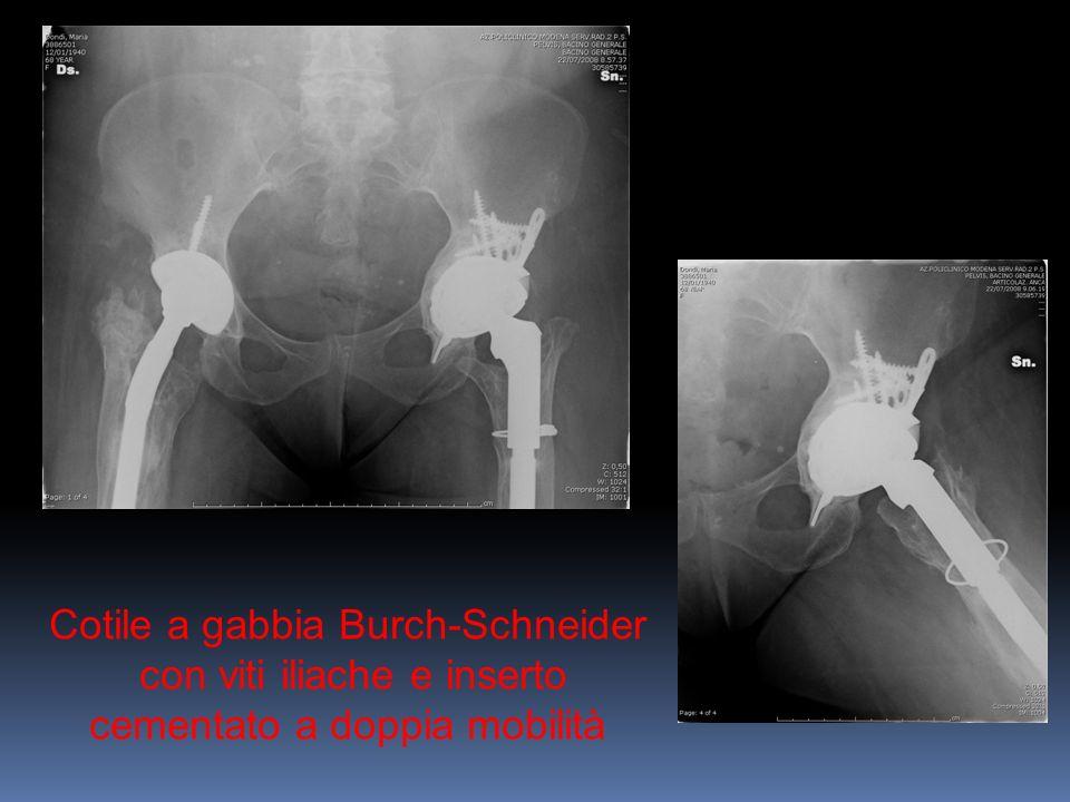 Cotile a gabbia Burch-Schneider con viti iliache e inserto cementato a doppia mobilità