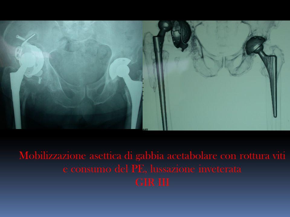 Mobilizzazione asettica di gabbia acetabolare con rottura viti e consumo del PE, lussazione inveterata GIR III
