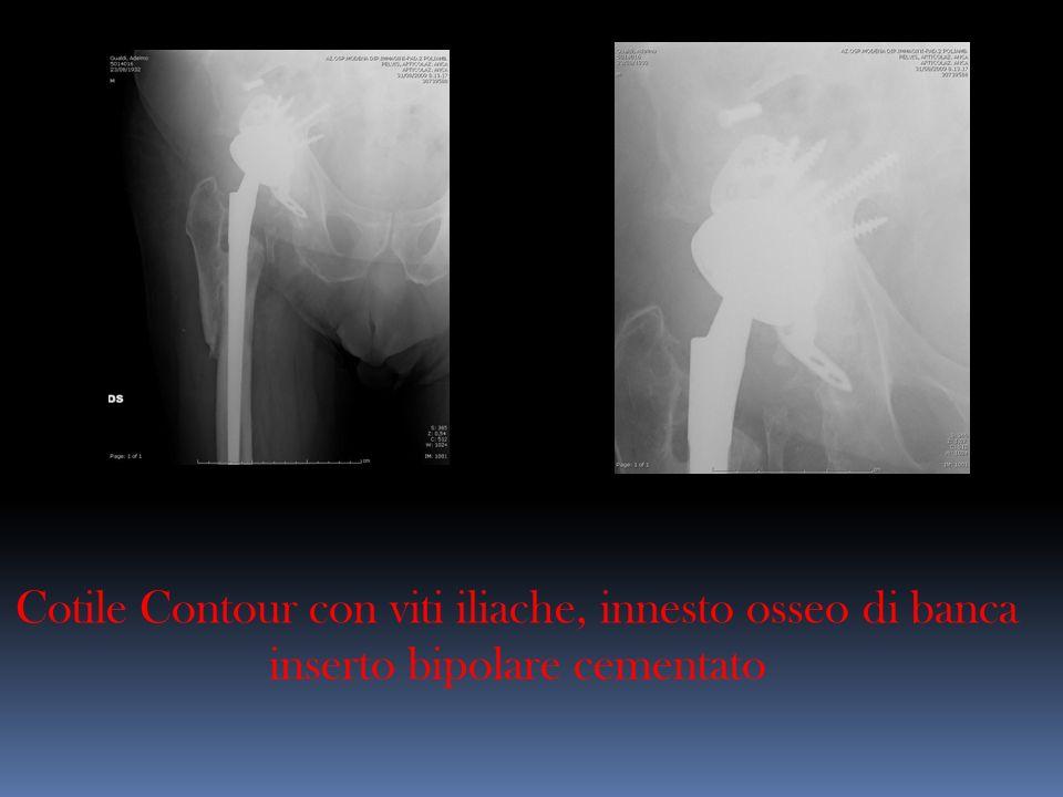 Cotile Contour con viti iliache, innesto osseo di banca inserto bipolare cementato