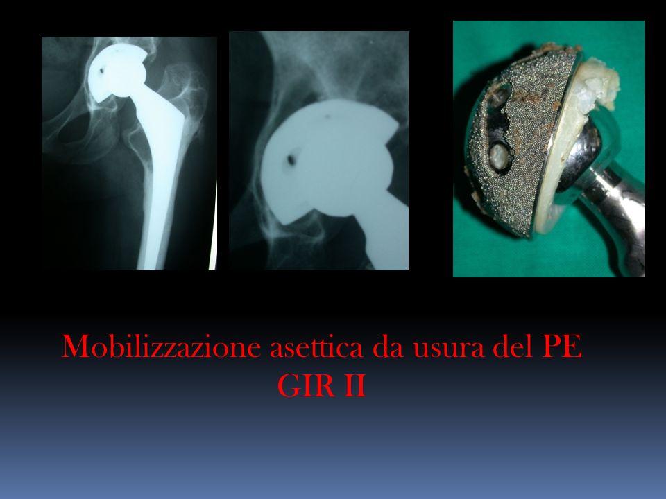 Mobilizzazione asettica da usura del PE GIR II