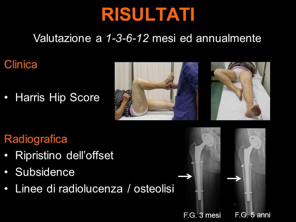 Clinica Harris Hip Score Radiografica Ripristino delloffset Subsidence Linee di radiolucenza / osteolisi RISULTATI Valutazione a 1-3-6-12 mesi ed annu