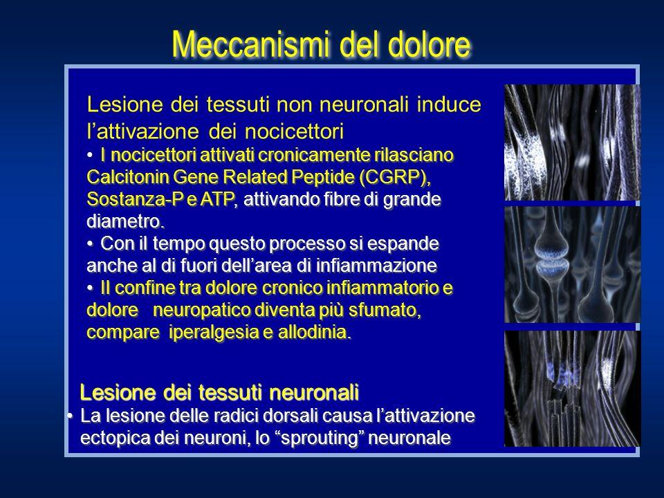 Lesione dei tessuti non neuronali induce lattivazione dei nocicettori I nocicettori attivati cronicamente rilasciano Calcitonin Gene Related Peptide (