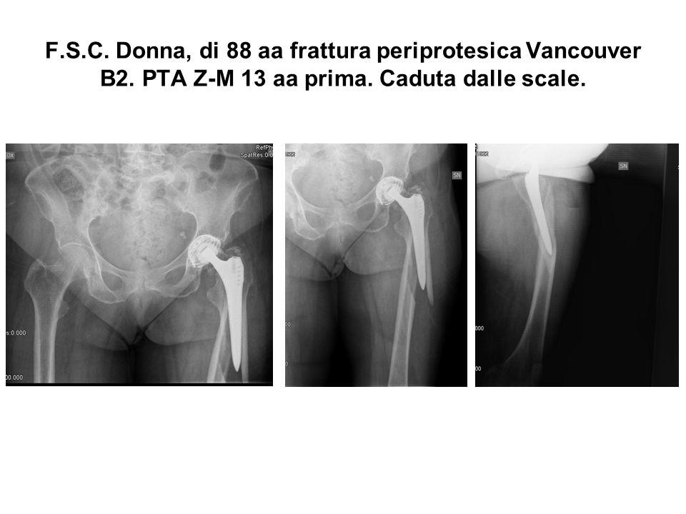 F.S.C. Donna, di 88 aa frattura periprotesica Vancouver B2. PTA Z-M 13 aa prima. Caduta dalle scale.