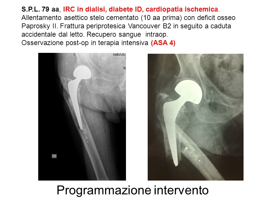 Programmazione intervento S.P.L. 79 aa, IRC in dialisi, diabete ID, cardiopatia ischemica. Allentamento asettico stelo cementato (10 aa prima) con def