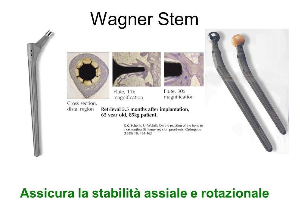 Wagner Stem Assicura la stabilità assiale e rotazionale