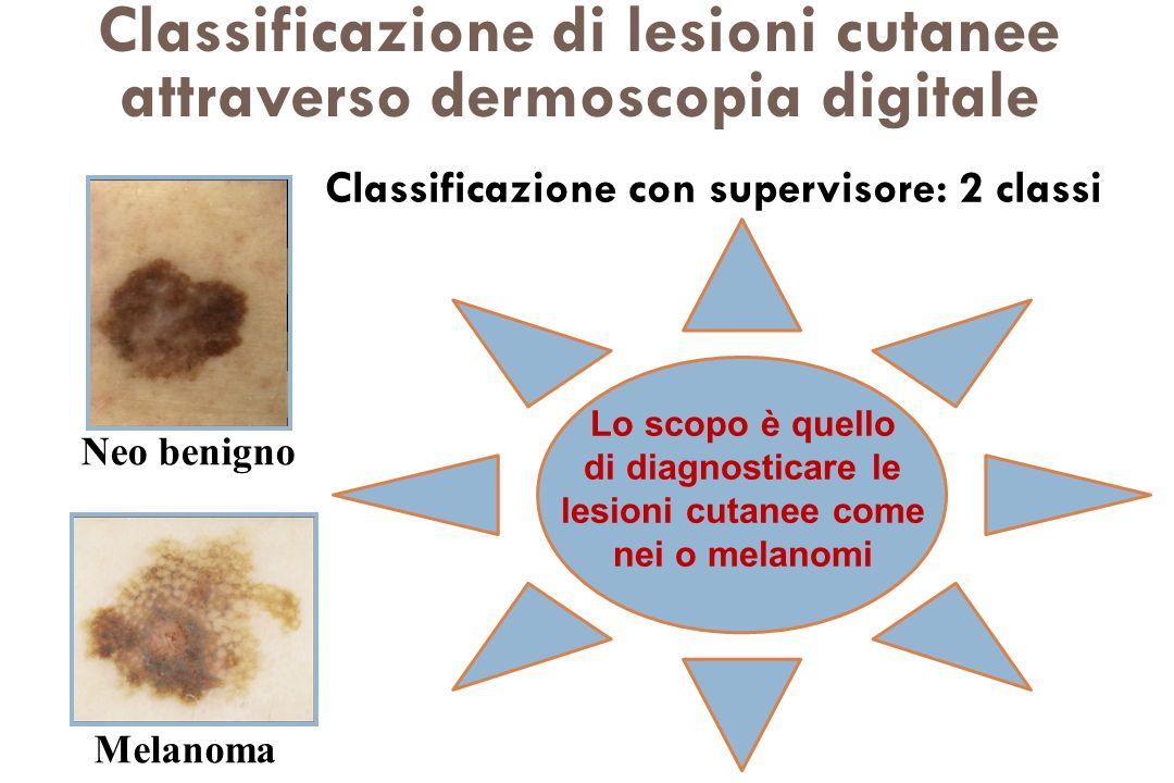 Classificazione di lesioni cutanee attraverso dermoscopia digitale Neo benigno Melanoma Lo scopo è quello di diagnosticare le lesioni cutanee come nei