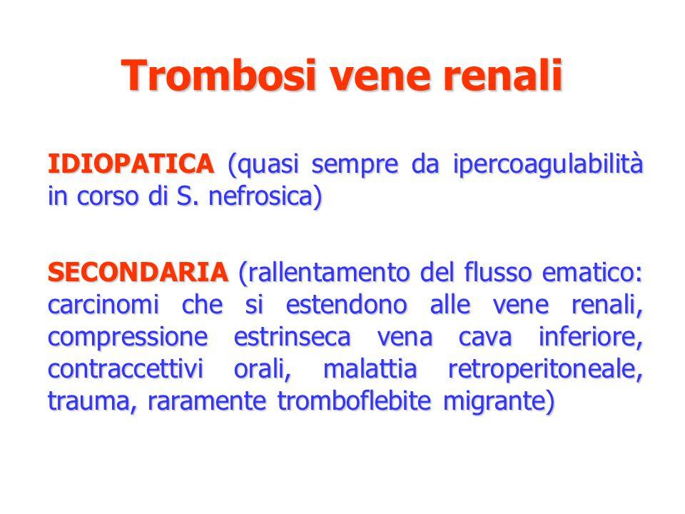 Trombosi vene renali IDIOPATICA (quasi sempre da ipercoagulabilità in corso di S. nefrosica) SECONDARIA (rallentamento del flusso ematico: carcinomi c