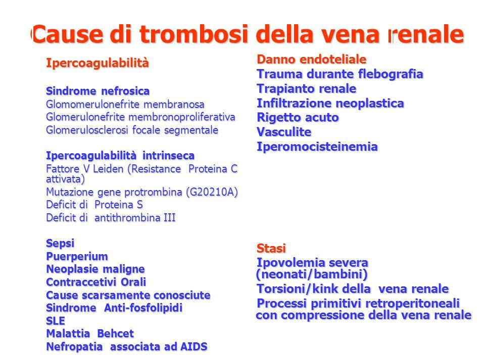 Cause di trombosi della vena renale Danno endoteliale Trauma durante flebografia Trapianto renale Infiltrazione neoplastica Rigetto acuto VasculiteIpe