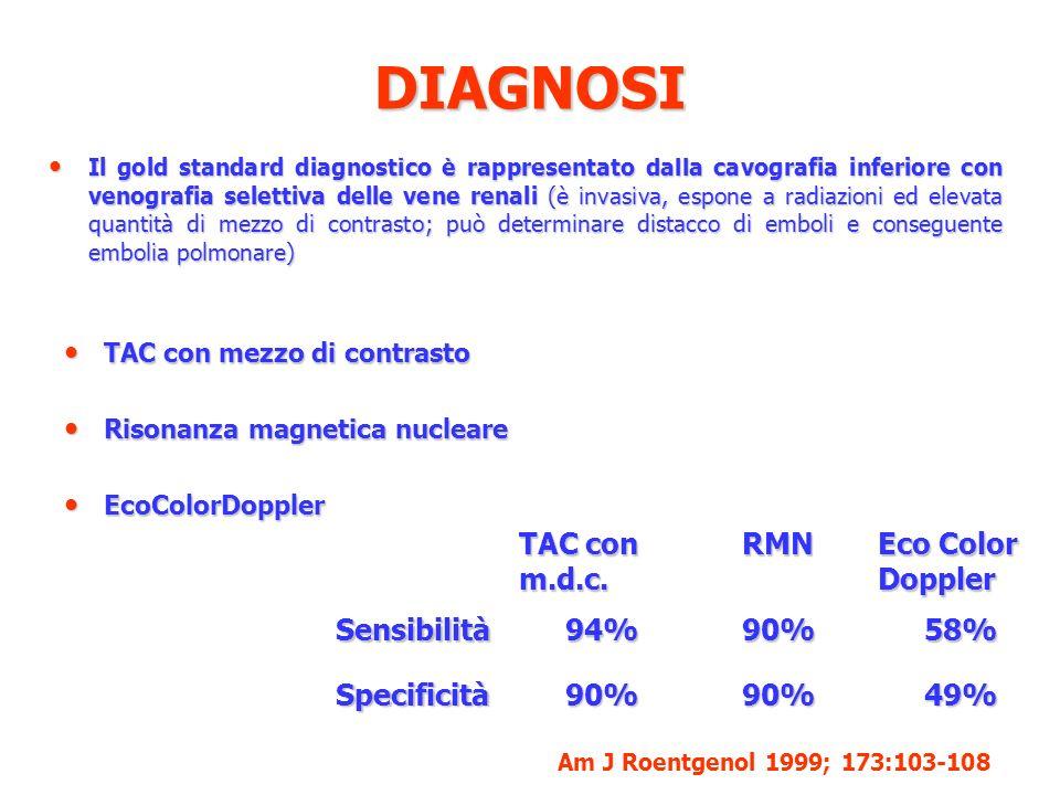 DIAGNOSI Il gold standard diagnostico è rappresentato dalla cavografia inferiore con venografia selettiva delle vene renali (è invasiva, espone a radi