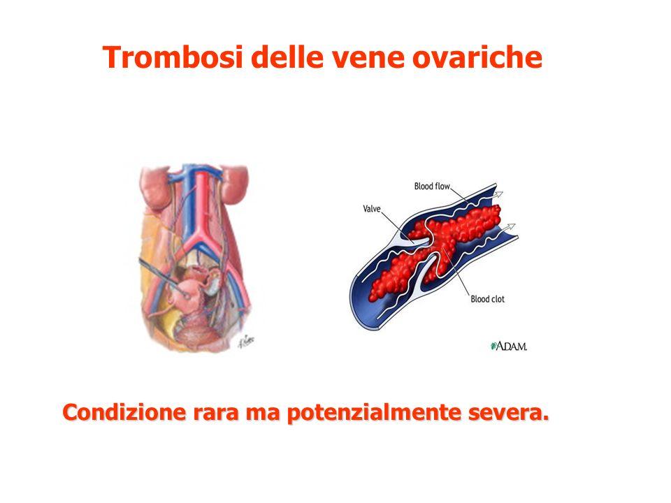 Trombosi delle vene ovariche Condizione rara ma potenzialmente severa.