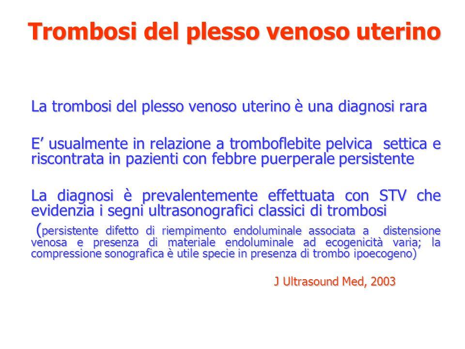 Trombosi del plesso venoso uterino La trombosi del plesso venoso uterino è una diagnosi rara E usualmente in relazione a tromboflebite pelvica settica