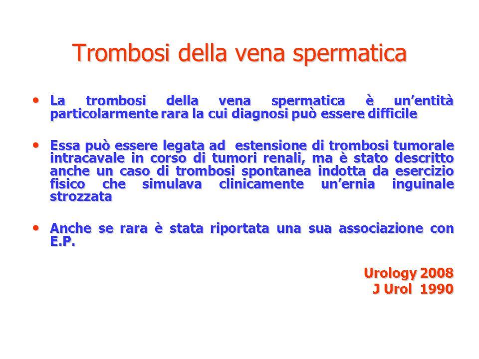 Trombosi della vena spermatica La trombosi della vena spermatica è unentità particolarmente rara la cui diagnosi può essere difficile La trombosi dell