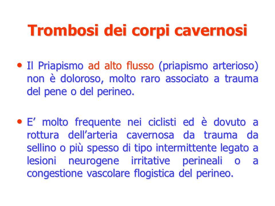 Trombosi dei corpi cavernosi Il Priapismo ad alto flusso (priapismo arterioso) non è doloroso, molto raro associato a trauma del pene o del perineo. I