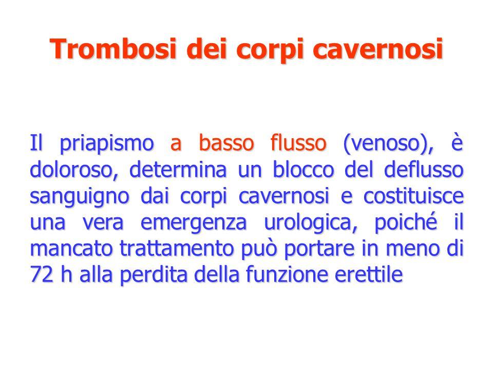 Trombosi dei corpi cavernosi Il priapismo a basso flusso (venoso), è doloroso, determina un blocco del deflusso sanguigno dai corpi cavernosi e costit