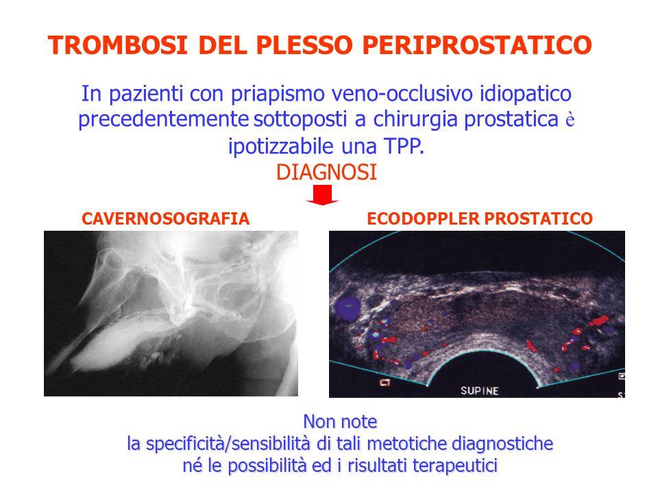 TROMBOSI DEL PLESSO PERIPROSTATICO In pazienti con priapismo veno-occlusivo idiopatico precedentemente sottoposti a chirurgia prostatica è ipotizzabil