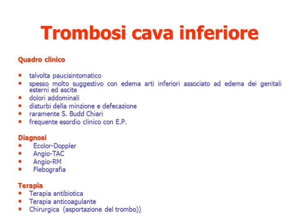 Trombosi cava inferiore Quadro clinico talvolta paucisintomatico talvolta paucisintomatico spesso molto suggestivo con edema arti inferiori associato