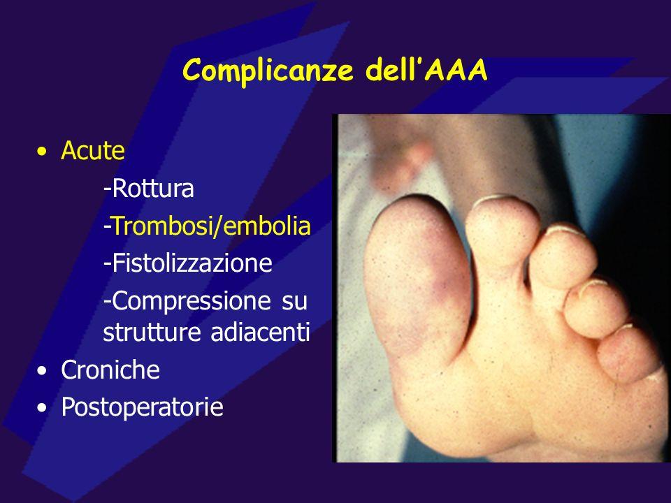 Complicanze dellAAA Acute -Rottura -Trombosi/embolia -Fistolizzazione -Compressione su strutture adiacenti Croniche Postoperatorie