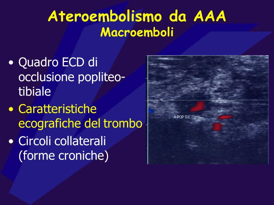 Ateroembolismo da AAA Macroemboli Quadro ECD di occlusione popliteo- tibiale Caratteristiche ecografiche del trombo Circoli collaterali (forme cronich