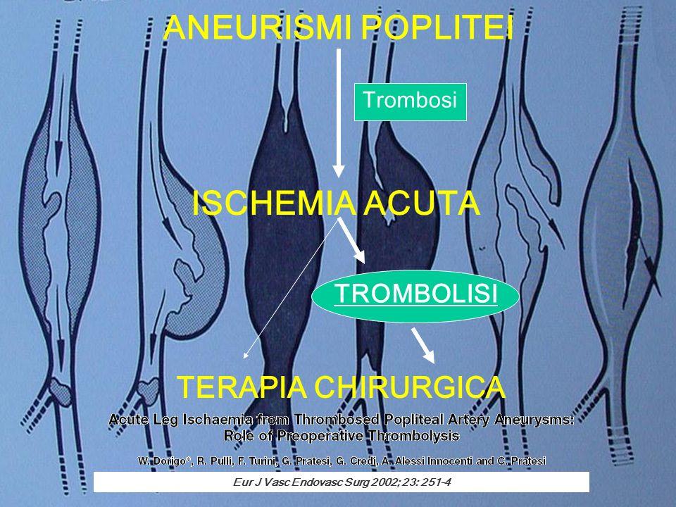 ANEURISMI POPLITEI ISCHEMIA ACUTA TERAPIA CHIRURGICA TROMBOLISI Trombosi Eur J Vasc Endovasc Surg 2002; 23: 251-4