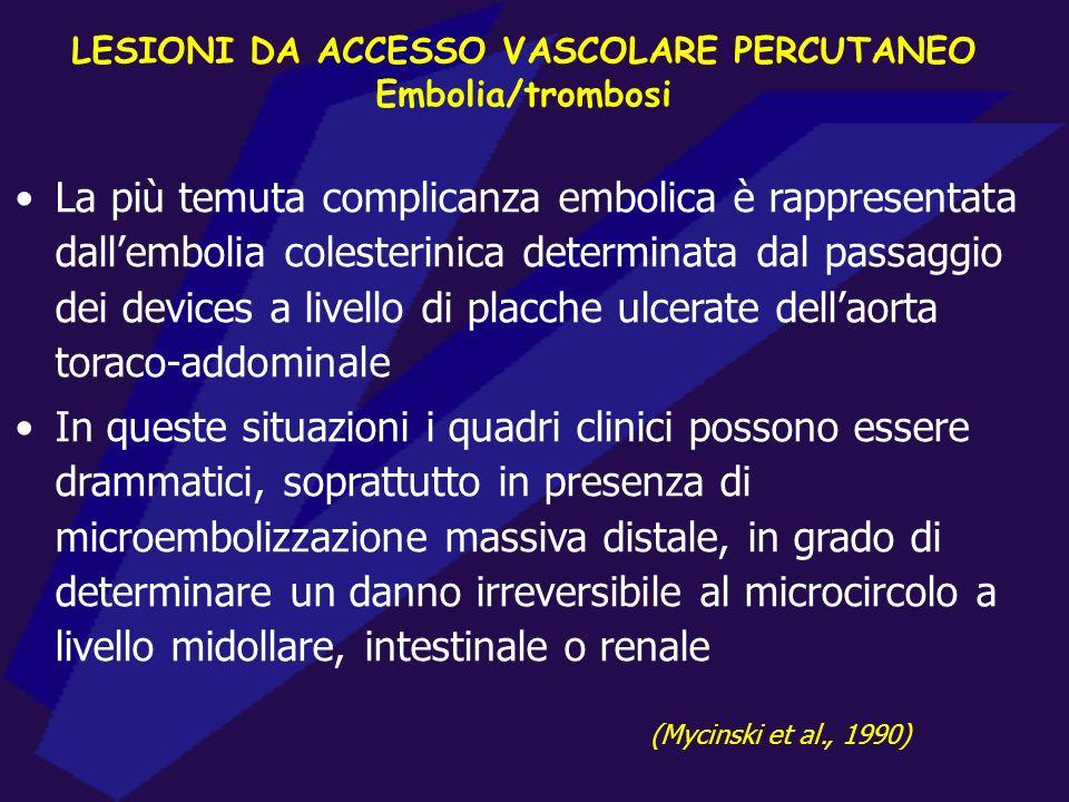 LESIONI DA ACCESSO VASCOLARE PERCUTANEO Embolia/trombosi La più temuta complicanza embolica è rappresentata dallembolia colesterinica determinata dal