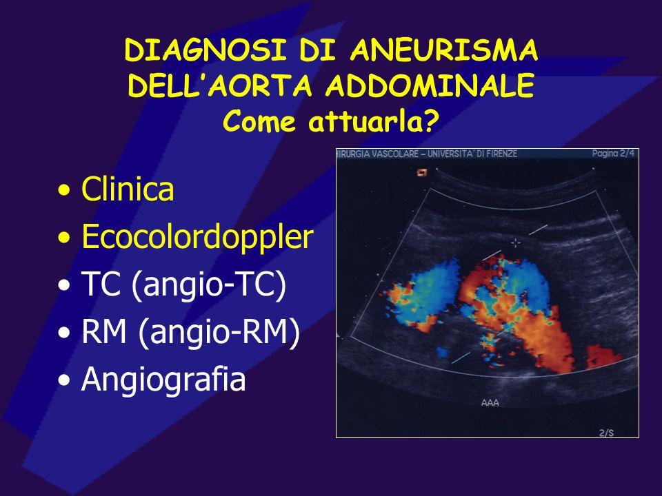 DIAGNOSI DI ANEURISMA DELLAORTA ADDOMINALE Come attuarla? Clinica Ecocolordoppler TC (angio-TC) RM (angio-RM) Angiografia
