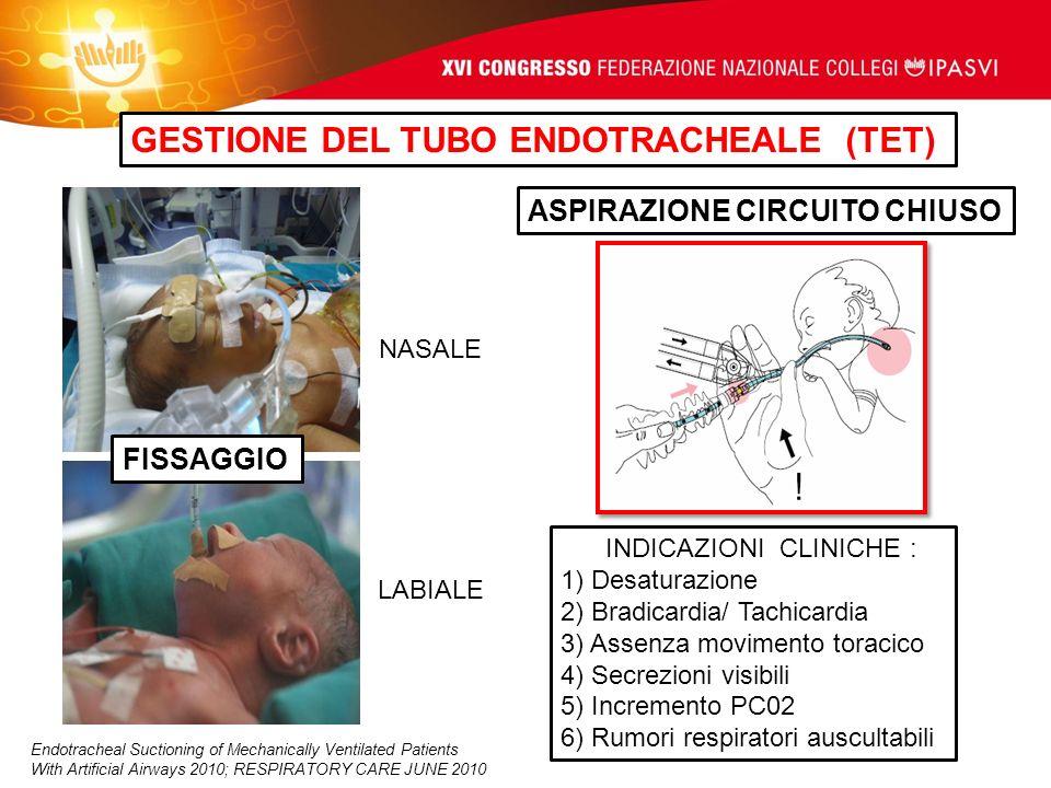 GESTIONE DEL TUBO ENDOTRACHEALE (TET) ASPIRAZIONE CIRCUITO CHIUSO LABIALE INDICAZIONI CLINICHE : 1) Desaturazione 2) Bradicardia/ Tachicardia 3) Assen