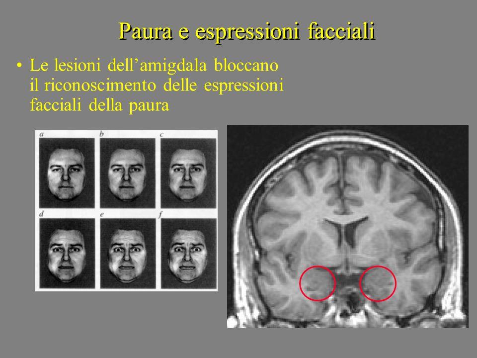 Paura e espressioni facciali Le lesioni dellamigdala bloccano il riconoscimento delle espressioni facciali della paura