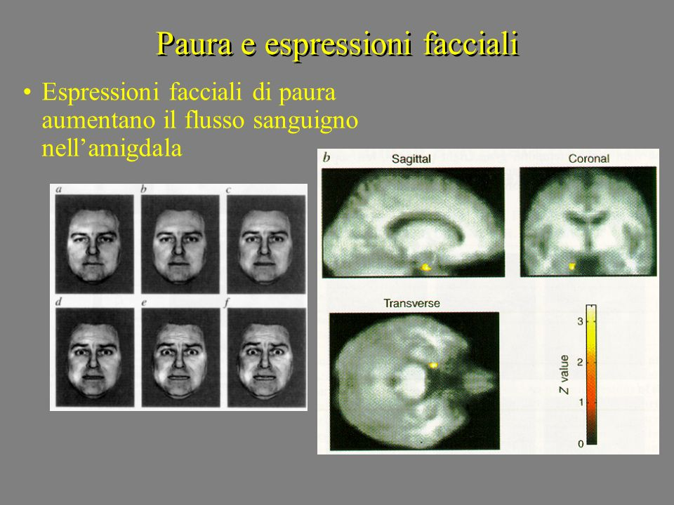 Paura e espressioni facciali Espressioni facciali di paura aumentano il flusso sanguigno nellamigdala