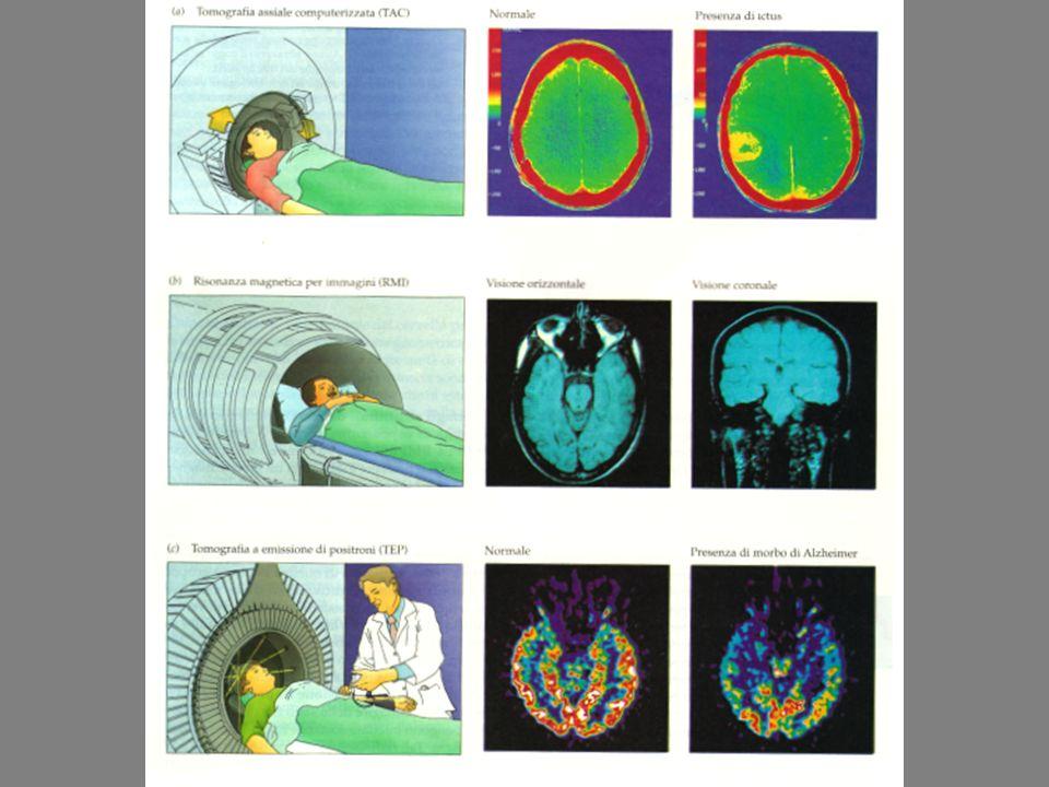 La plasticità cerebrale