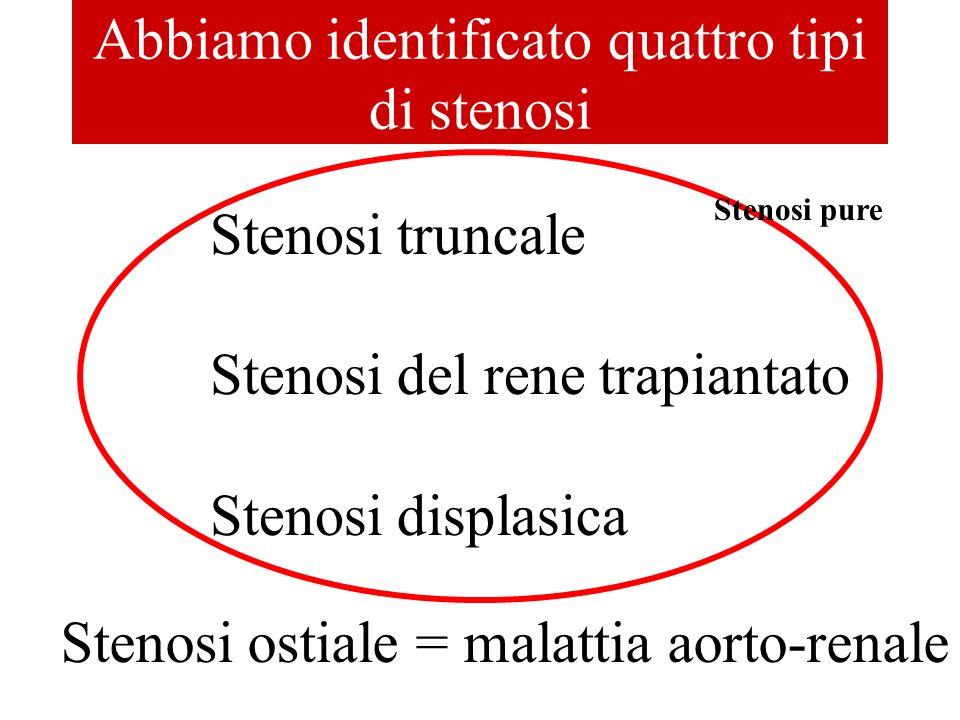 Abbiamo identificato quattro tipi di stenosi Stenosi truncale Stenosi del rene trapiantato Stenosi displasica Stenosi ostiale = malattia aorto-renale