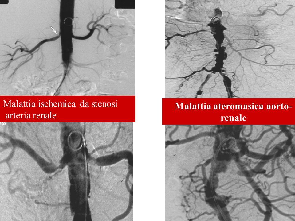 Malattia ischemica da stenosi arteria renale Malattia ateromasica aorto- renale