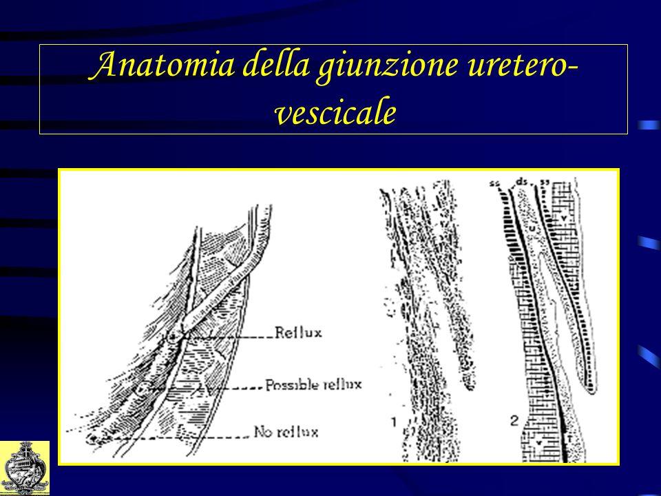 Anatomia della giunzione uretero- vescicale