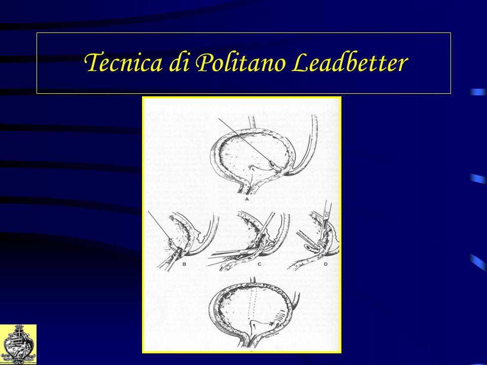 Tecnica di Politano Leadbetter