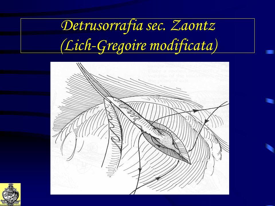 Detrusorrafia sec. Zaontz (Lich-Gregoire modificata)