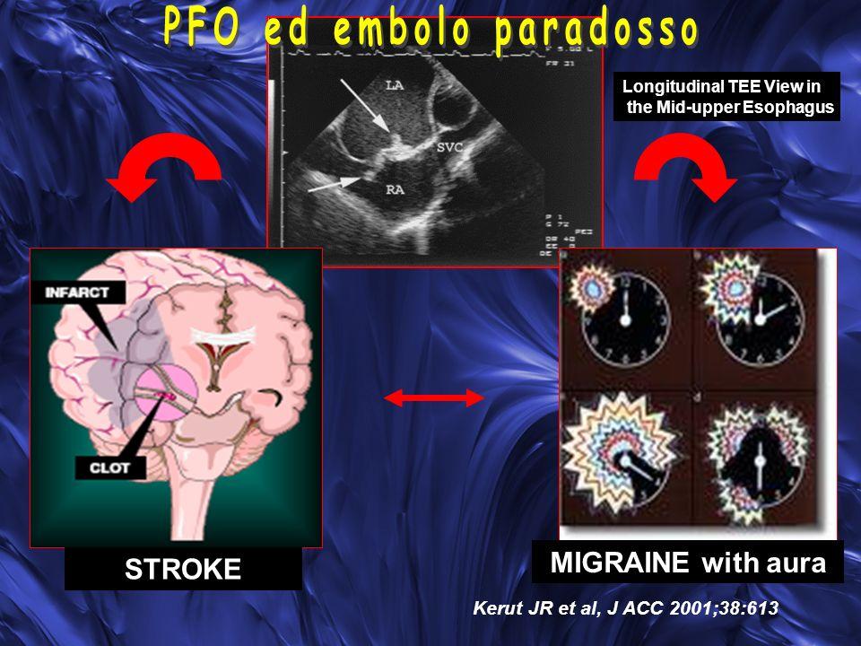 STROKE MIGRAINE with aura Kerut JR et al, J ACC 2001;38:613 Longitudinal TEE View in the Mid-upper Esophagus