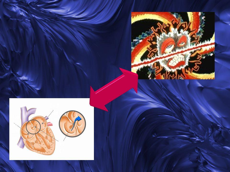 E relativamente comune negli adulti con cardiopatie congenite associate a shunt dx>sn.