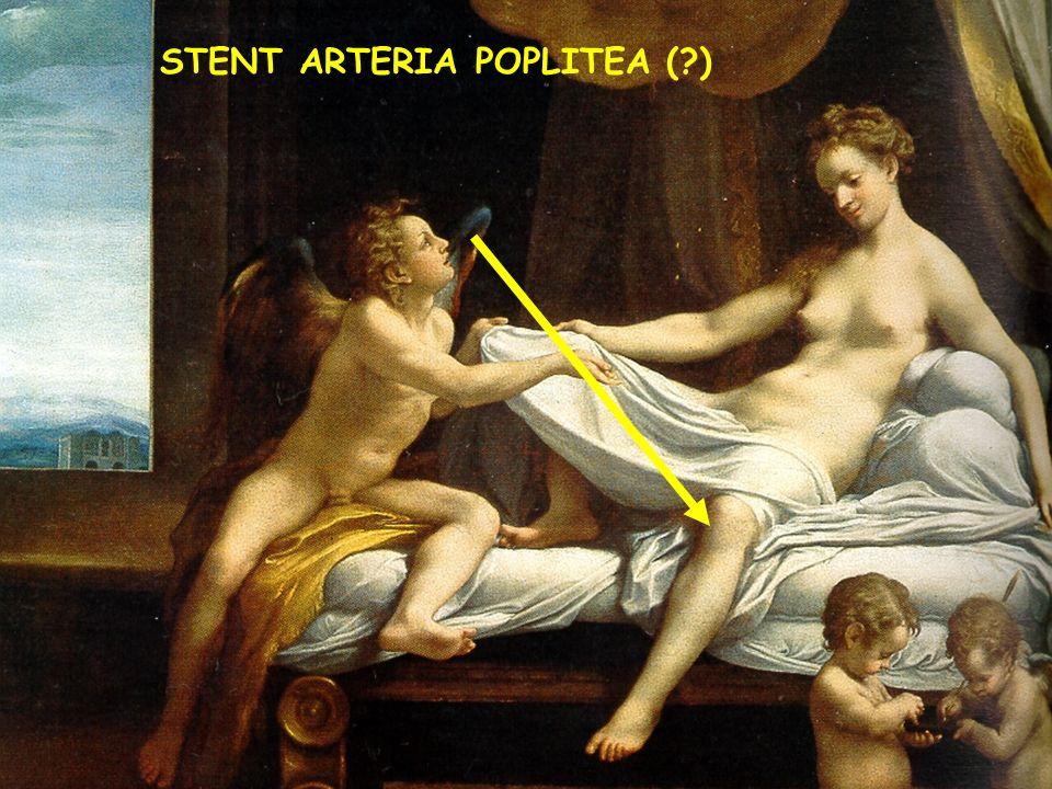 STENT ARTERIA POPLITEA (?)