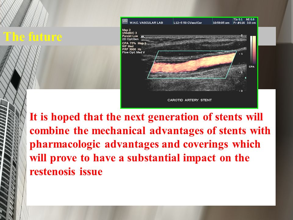 The future It is hoped that the next generation of stents will combine the mechanical advantages of stents with pharmacologic advantages and coverings
