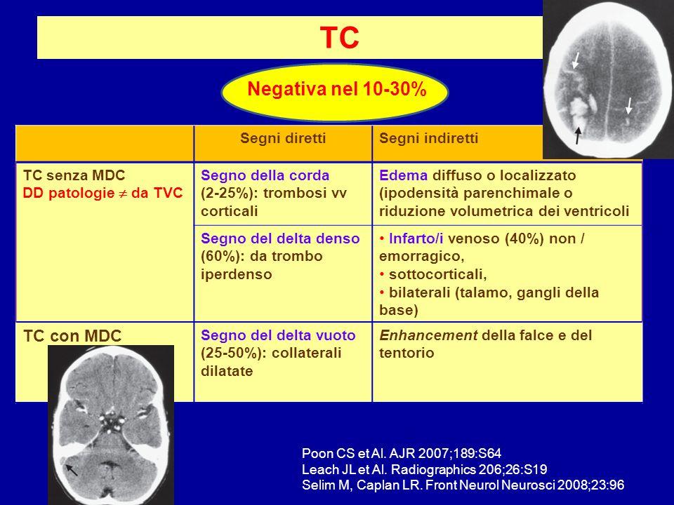 TC Negativa nel 10-30% Segni direttiSegni indiretti TC senza MDC DD patologie da TVC Segno della corda (2-25%): trombosi vv corticali Edema diffuso o