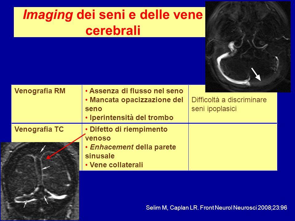 Imaging dei seni e delle vene cerebrali Venografia RM Assenza di flusso nel seno Mancata opacizzazione del seno Iperintensità del trombo Difficoltà a